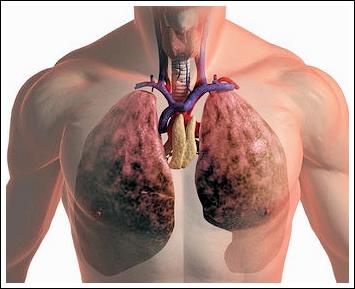 Серед профнедуг на Волині лідирують захворювання органів дихання