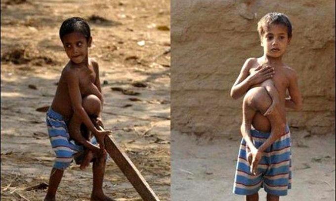 Індійського хлопчика з чотирма ногами вважали Шивою