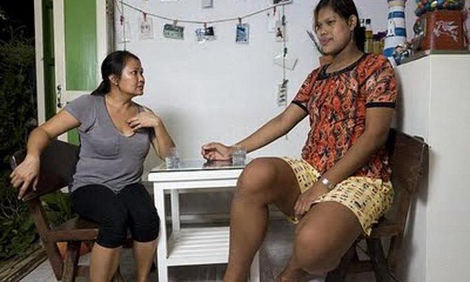Сліпа тайська дівчинка через пухлину в мозку стала найвищим підлітком на планеті
