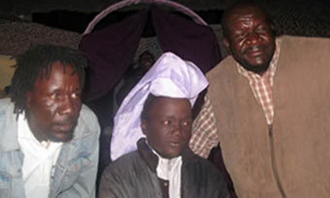 30-річний найпотворніший зімбабвієць радий своєму успіху