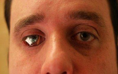 Житель Канади вставив замість ока відеокамеру