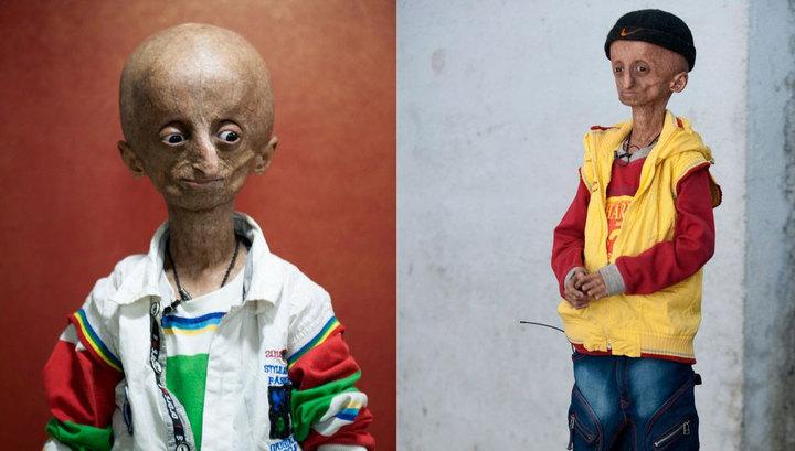 Через рідкісну хворобу 15-річний індієць виглядає дуже старим