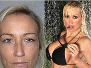 Німецький пластичний хірург перекроїв дружину до невпізнанності