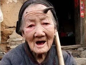 У столітньої жінки на лобі виріс ріг